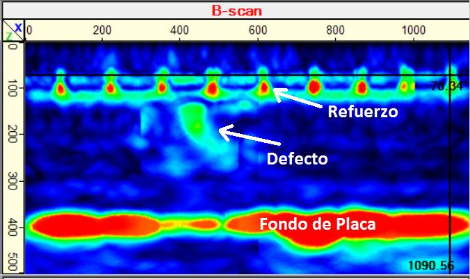 Eco-Ultrasonico